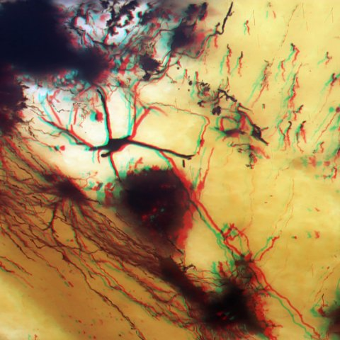 Use Red/Cyan Anaglyph glasses to see this 3D Stereo image of a Golgi stained thick sliced cerebellum specimen.  Microscope objective: 20X.