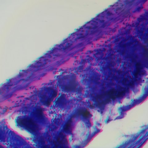 Use Red/Cyan Anaglyph glasses to see this 3D Stereo image of HE stained 30 micrometer gut slice. Microscope resolution: N.A. 0.95 - 40X.