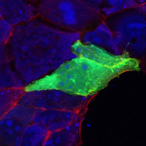 NOD2 (green) transfected CACO2-cells
